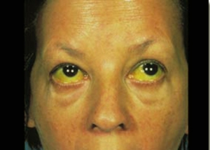 Apalachicola Bay Corexit Poisoning